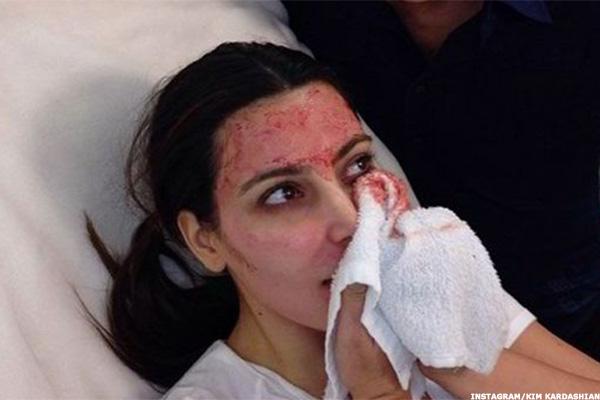 1 500 Buys A Kim Kardashian Vampire Facial Thestreet