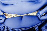 'Obesity Paradox' Is a Myth, Researchers Say